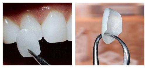 Trồng răng sứ Veneer