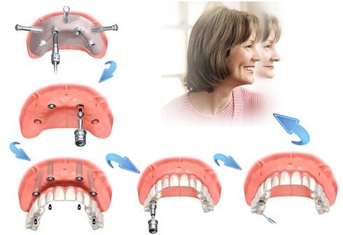 Kỹ thuật cấy ghép răng Implant nha khoa
