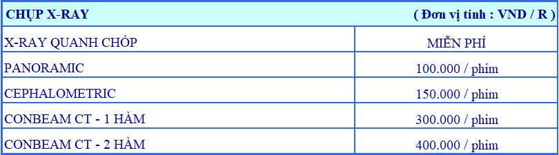 Bảng giá chụp phim nha khoa