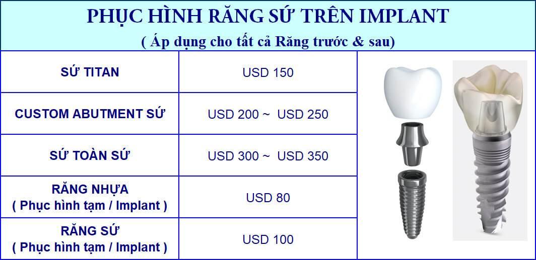 Bảng giá phục hình răng sứ Implant