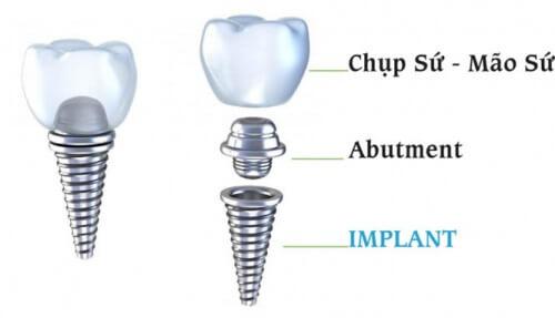 cấy ghép răng là gì