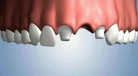 Cầu răng sứ 3