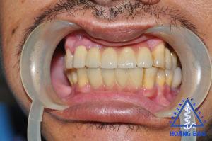 cay-implant-nkhb-hoa 1