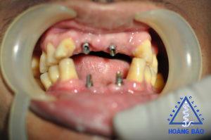cấy implant-nkhb-hoa