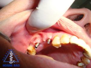 cấy implant nkhb 2