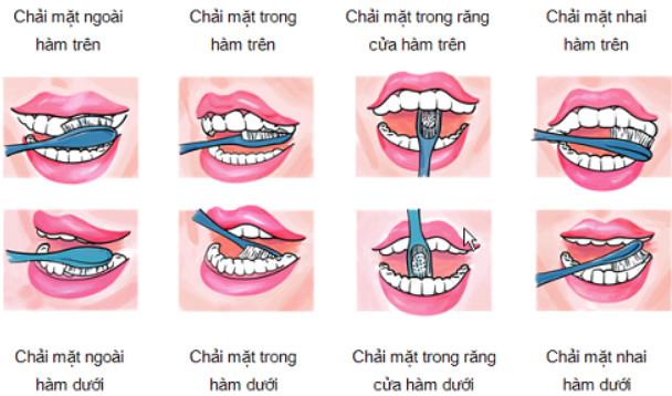 Chăm sóc răng cấy ghép implant