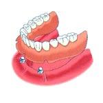 Implant thay thế toàn hàm