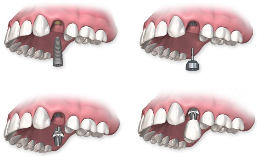 Quy trình cấy ghép răng implant nha khoa