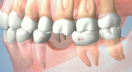 Cầu răng sứ h3