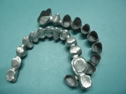 Răng sứ sườn kim loại