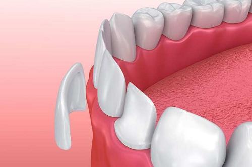 Phương phá dán sứ veneer cho răng